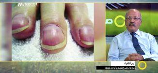 لون أظافرك قد يدل على إصابتك بأمراض عديدة - د. حليم عزام - صباحنا غير- 27.9.2017 - مساواة