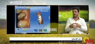 جهاز اسمه الميلينج داخل العيادة ينتج القشور التلابيس! ،د. إياد حسن،صباحنا غير، 24.4.2018