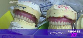 طب الاسنان عمل تقنيي الأسنان - Reports X7، 02 03 2018 - قناة مساواة الفضائية