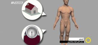 تقرير - السكري، مرض القرن الواحد والعشرين -  صباحنا غير- 11-4-2017 - قناة مساواة الفضائية