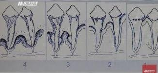 الوعي الصحي لسلامة الاسنان في شهر طب الأسنان ،صباحنا غير، 19-2-2019،قناة مساواة