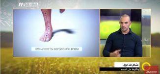 مشاكل كف الرجل.. كبف تؤثر على الجسم ! - عبد جلجولي- صباحنا غير- 30.11.2017 - قناة مساواة