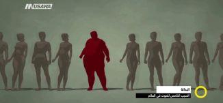 تقرير - البدانة السبب الخامس للموت في العالم   - صباحنا غير-8-6-2017 -  قناة مساواة الفضائية